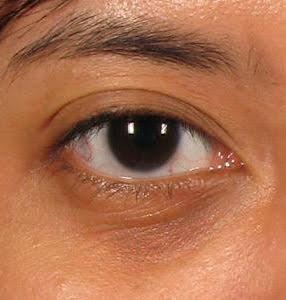 Tear trough dark circles Dr siew