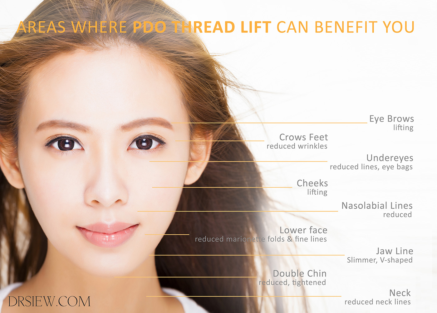 What You Need to Know About PDO Thread Lift | Non-Surgical Skin Lifting