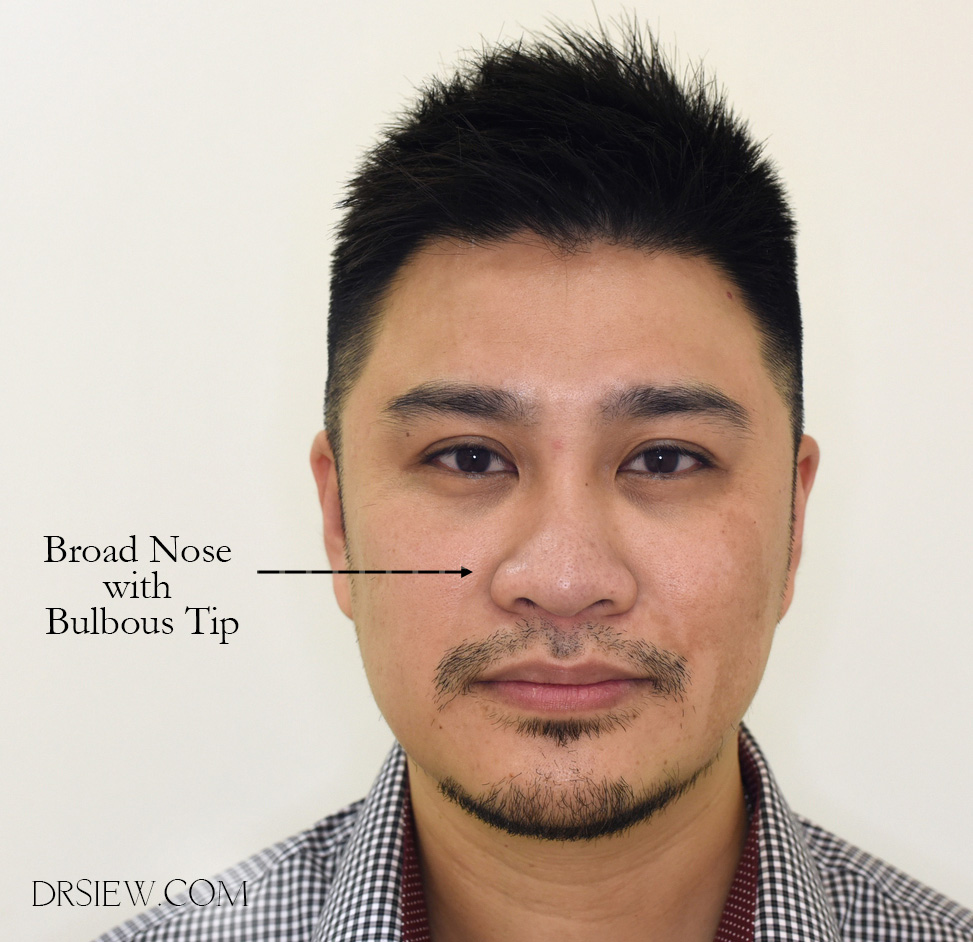 Dr Siew Broad Nose Everything you need to know Fillers