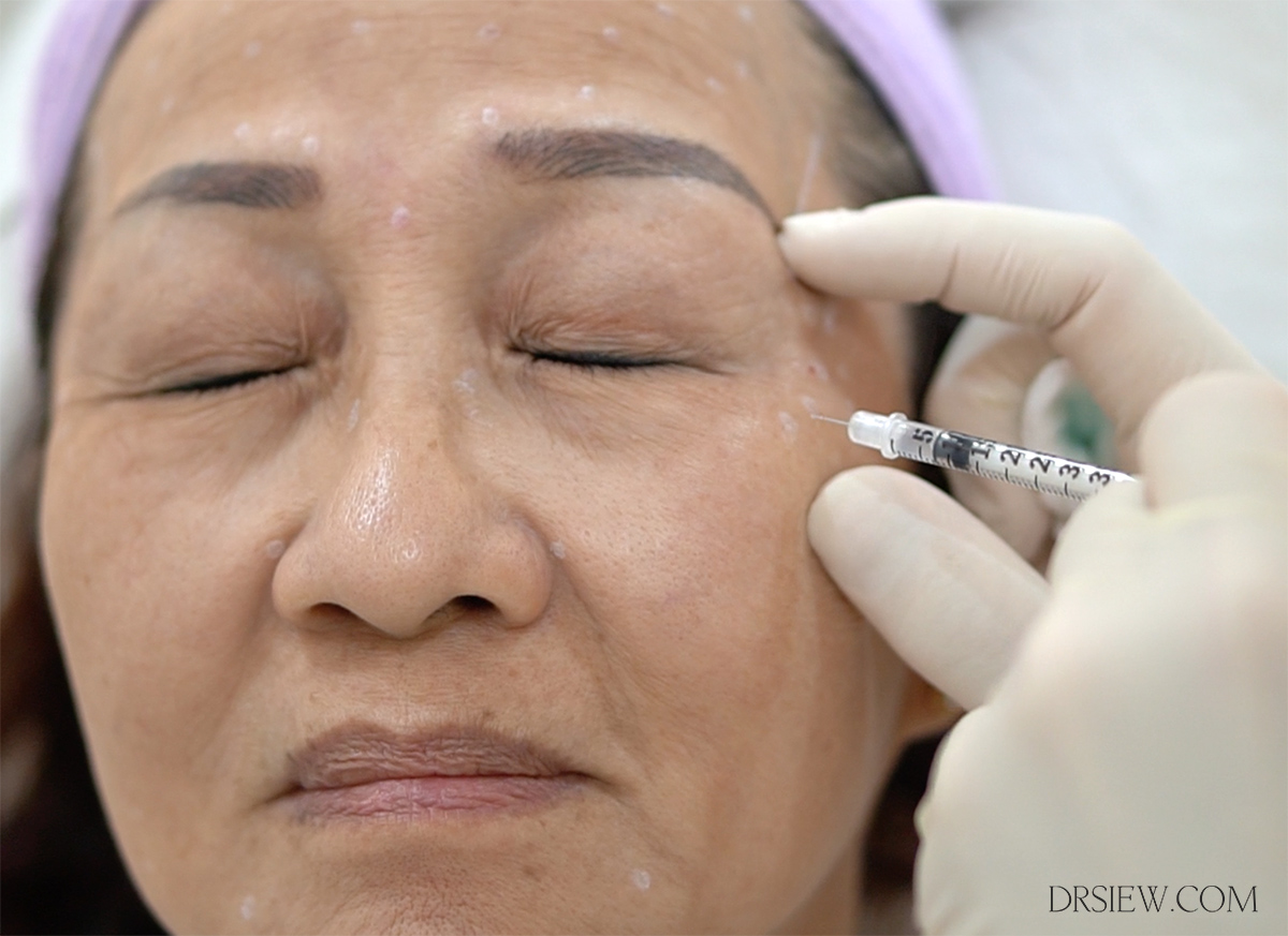 Dr Siew Xeomin Botox Dysport procedure