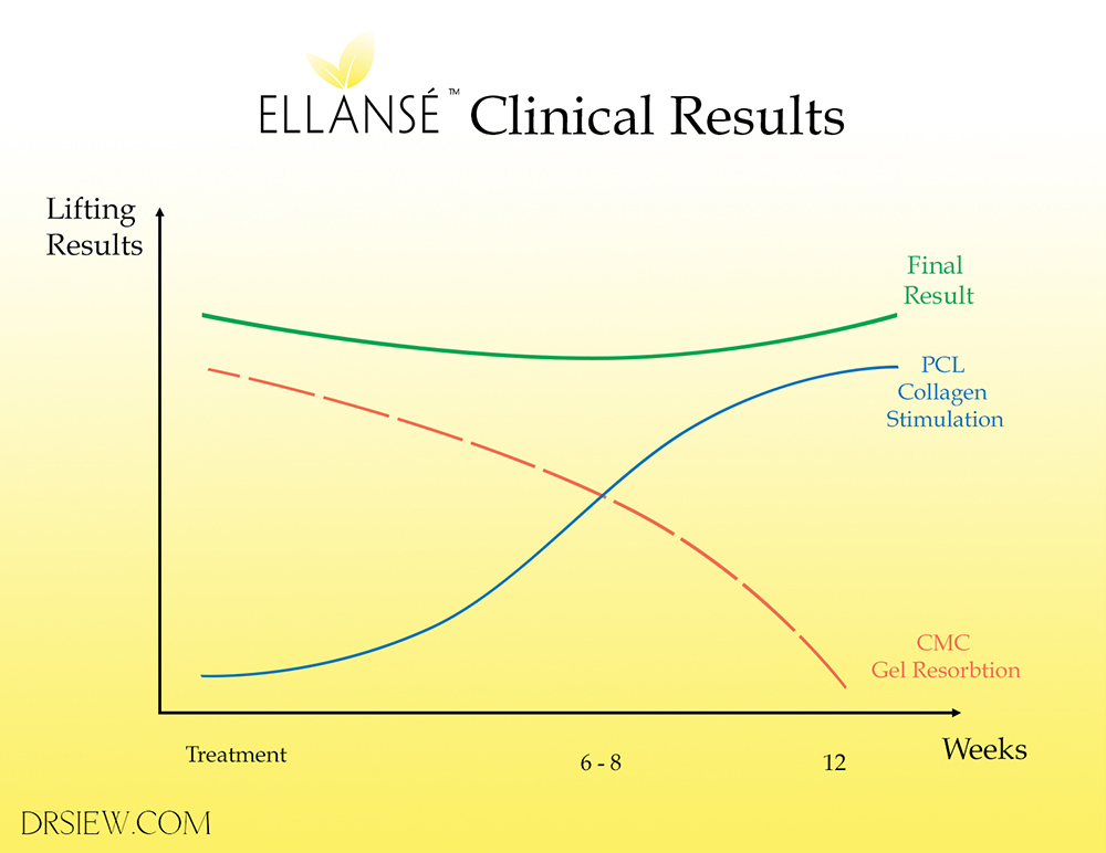 Ellanse Clinical Results Dr Siew.com