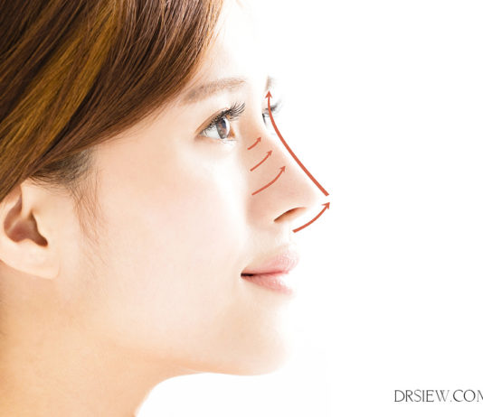 Non Surgical Nose Lift Dr siew
