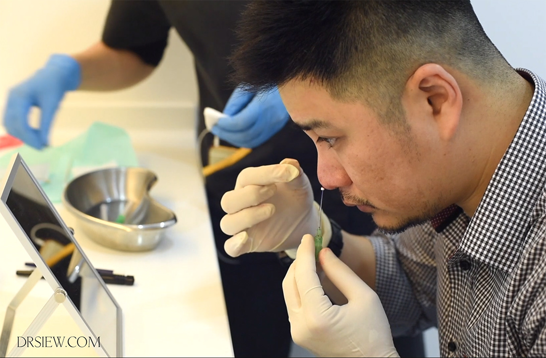 Nose Thread Lift See How Dr Siew Tuck Wah Performs The