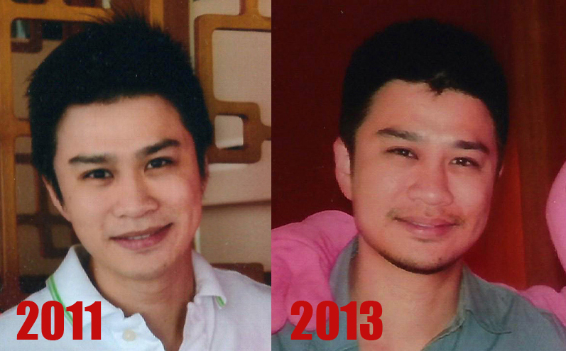 Dr Siew before after 2013