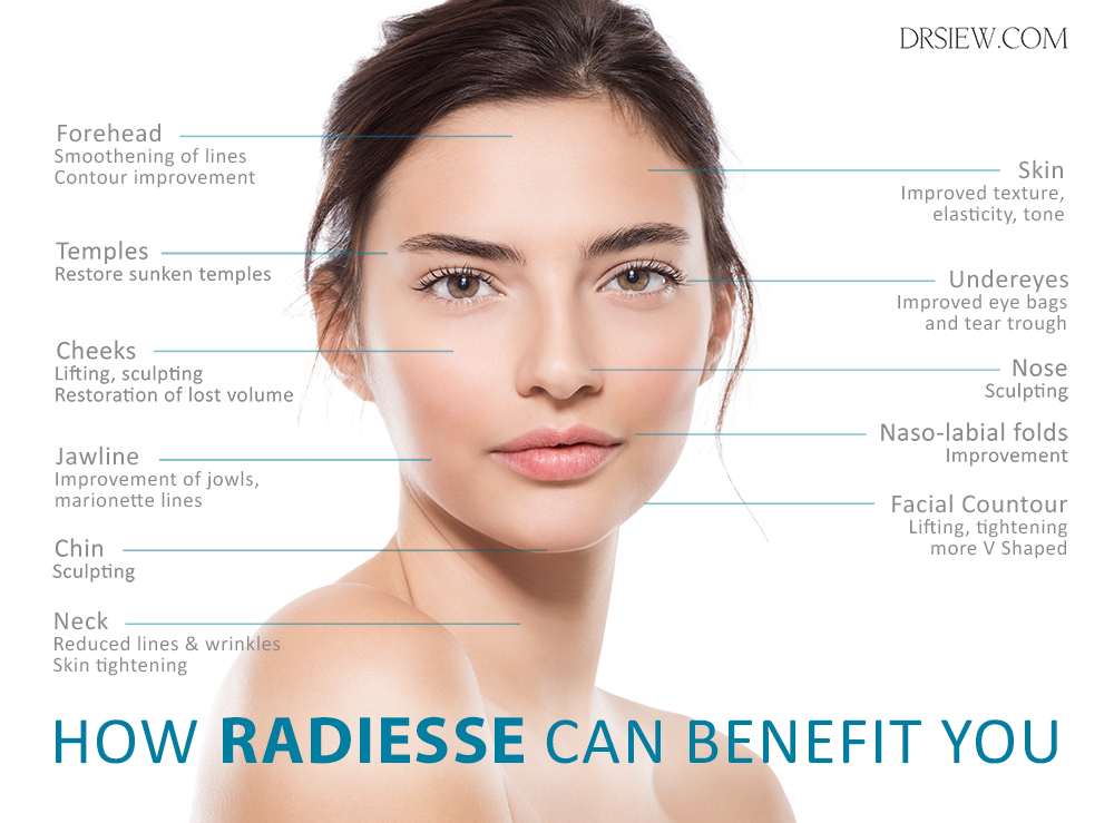 Areas where RADIESSE can benefit you Dr Siew