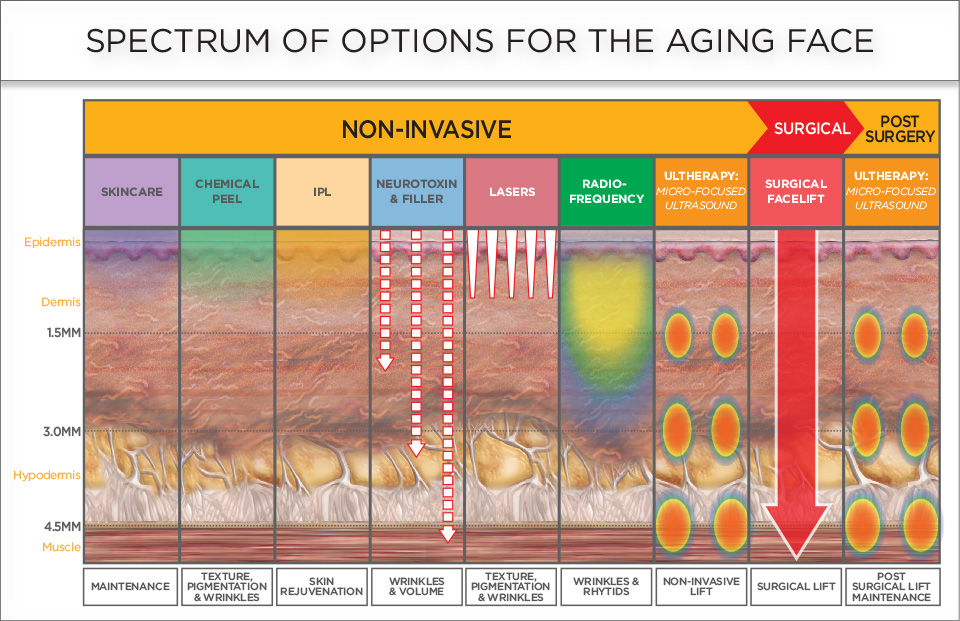 Treatment Options Aging Face Ultherapy Dr Siew