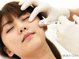 Everything you need to know dermal fillers Dr Siew