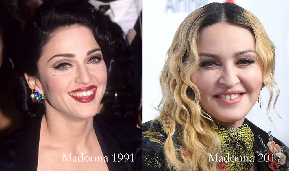 madonna before after pillow face Dr Siew