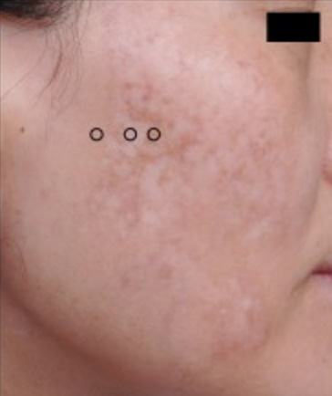mottled hypopigmentation