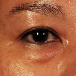 Eye-Bag Filler Dr Siew