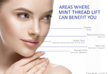 MINT LIFT Treatment Areas Dr Siew