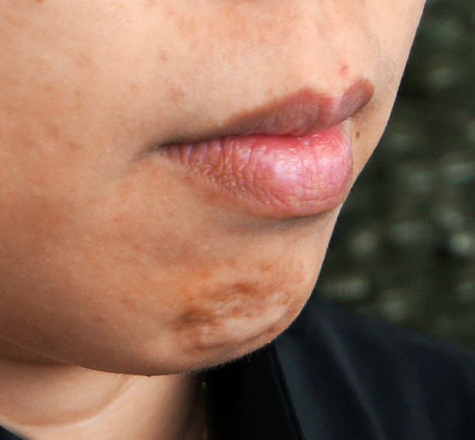 A Simple Method to Enhance Your Profile - Botox Chin | Dr