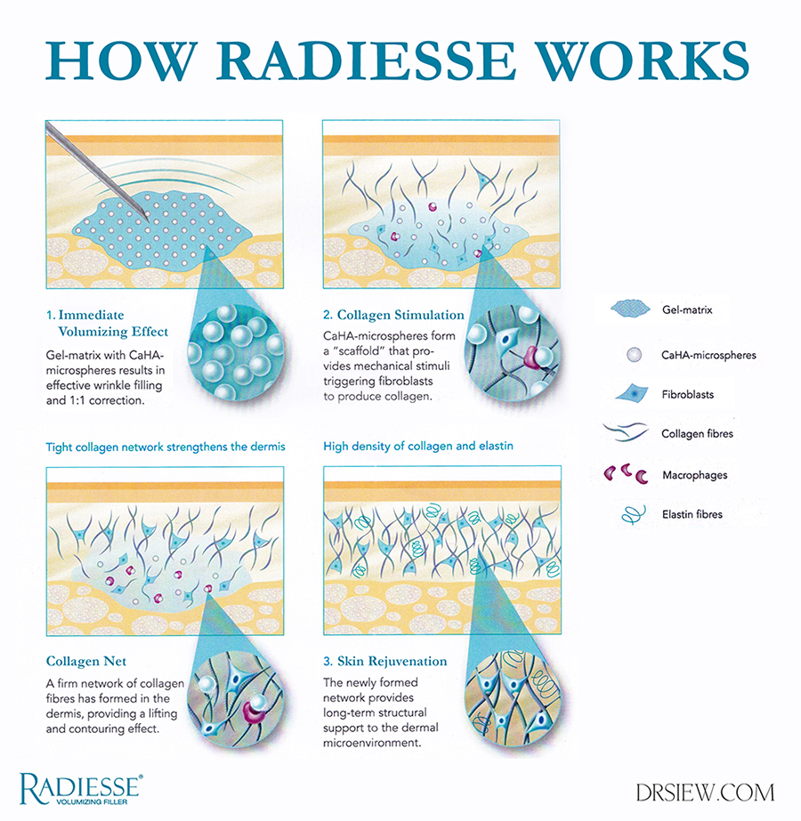 RADIESSE: The Most Versatile Filler for Lifting