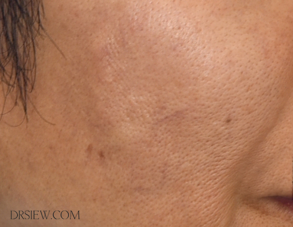 What You Need to Know About PDO Thread Lift | Non-Surgical