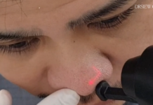Dr Siew eCo Carbon Dioxide Fractional Resurfacing Laser for Nose Acne Scars