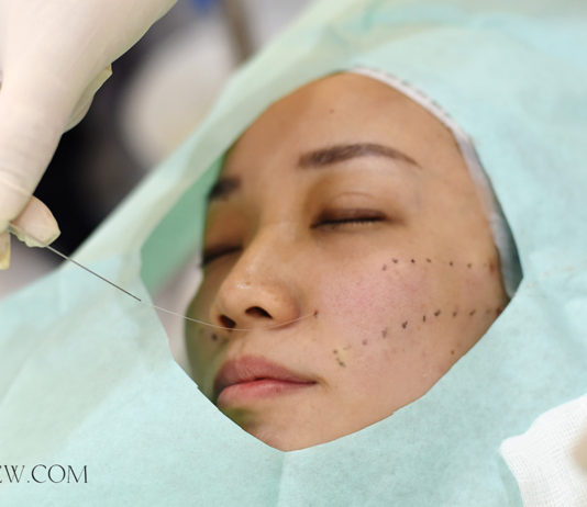 Silhouette Soft Procedure Dr Siew