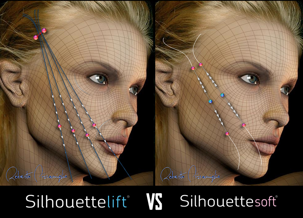 Silhouettte Lift vs Silhouette Soft | Dr Siew