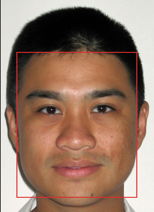 This mugshot of myself 11 years ago shows a typical square shaped face, due to very large master muscles