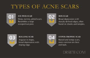 Acne Scars: Best Treatment Options - Lasers, TCA, Micro