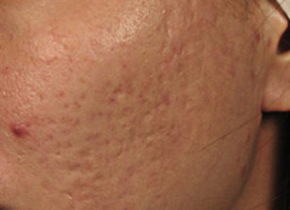 Acne Scars treatment singapore